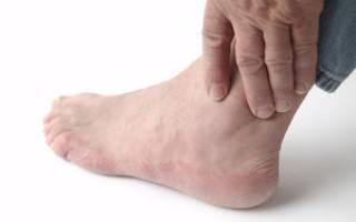 Артроз лодыжки после перелома лечение