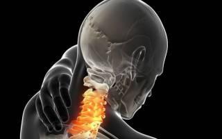 Грыжа шейного отдела позвоночника симптомы лечение
