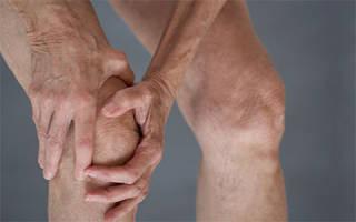 Артроз болит колено что делать