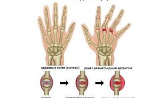 Как правильно питаться при ревматоидном артрите