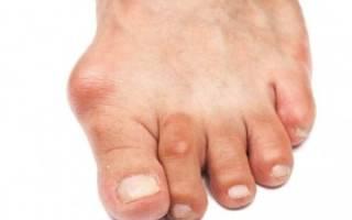 Артроз пальца на ноге лечение