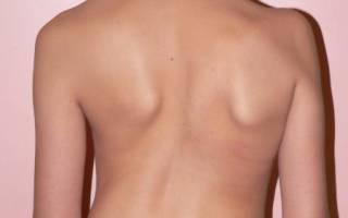 Деформация грудной клетки и сколиоз