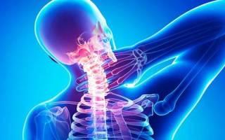 Какие симптомы при остеохондрозе шейного отдела