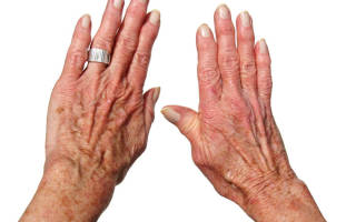 Чем лечить остеоартроз кистей рук