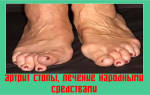 Артрит стопы лечение народными средствами