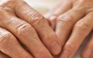 Артроз фалангов пальцев рук лечение
