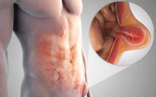 Лечение паховой грыжи без операции
