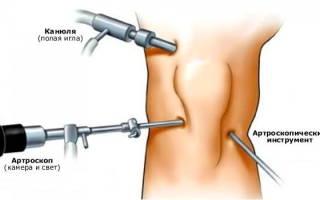 Операции на коленном суставе в москве
