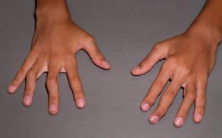 Как вылечить артрит у ребенка