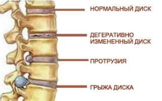 Физкультура при грыже поясничного отдела позвоночника с картинками