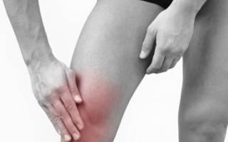 Болезни коленного сустава какие бывают