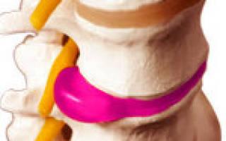 Грыжи межпозвонковых дисков поясничного отдела позвоночника лечение