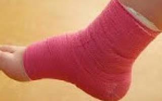 Лечение мочой артритов у детей