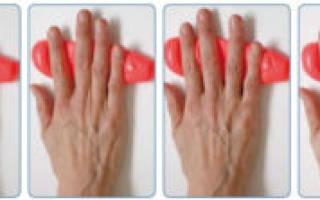 Лфк при артрите пальцев рук