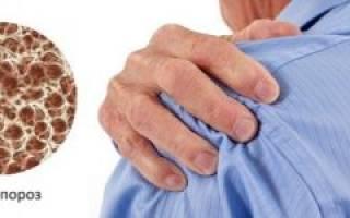 Остеопороз плечевого сустава симптомы и лечение