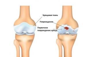 Чем лечить остеоартроз коленного сустава