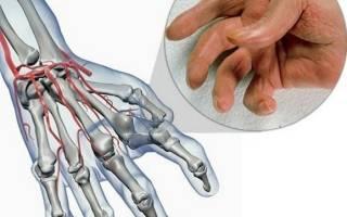 Артрит большого пальца руки симптомы