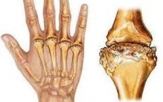 В основе ревматоидного артрита лежит