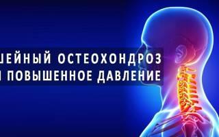 Скачки давления при шейном остеохондрозе симптомы