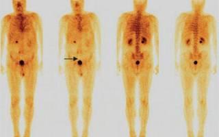 Остеосцинтиграфия где сделать в москве