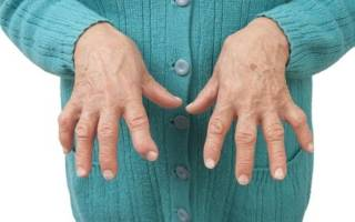 Болезнь полиартрит лечение и симптомы