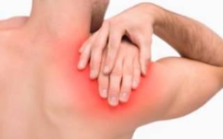 Острая боль в плечевом суставе при движении