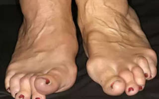 Лечение артрита ног народными средствами