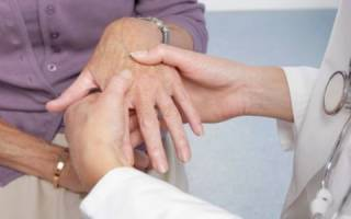 Блуждающий артроз симптомы и лечение