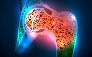 Остеопороз симптомы и лечение фото